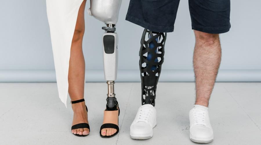 Two pairs of legs of a man (right) and woman (left) side by side, where one leg of each person is a prosthetic leg.